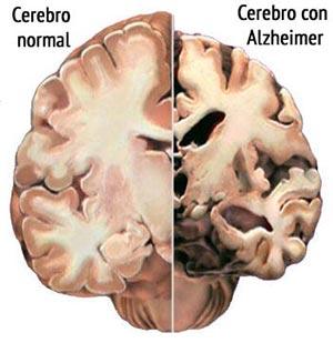 Alzheimer_causas