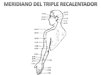 Meridiano-Triple-Recalentador
